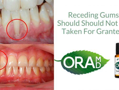 Receding Gums Should Should Not Be Taken For Granted (1)