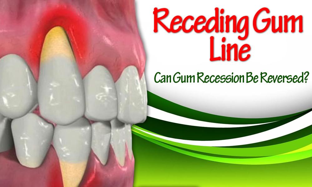 Receding-Gum-Line