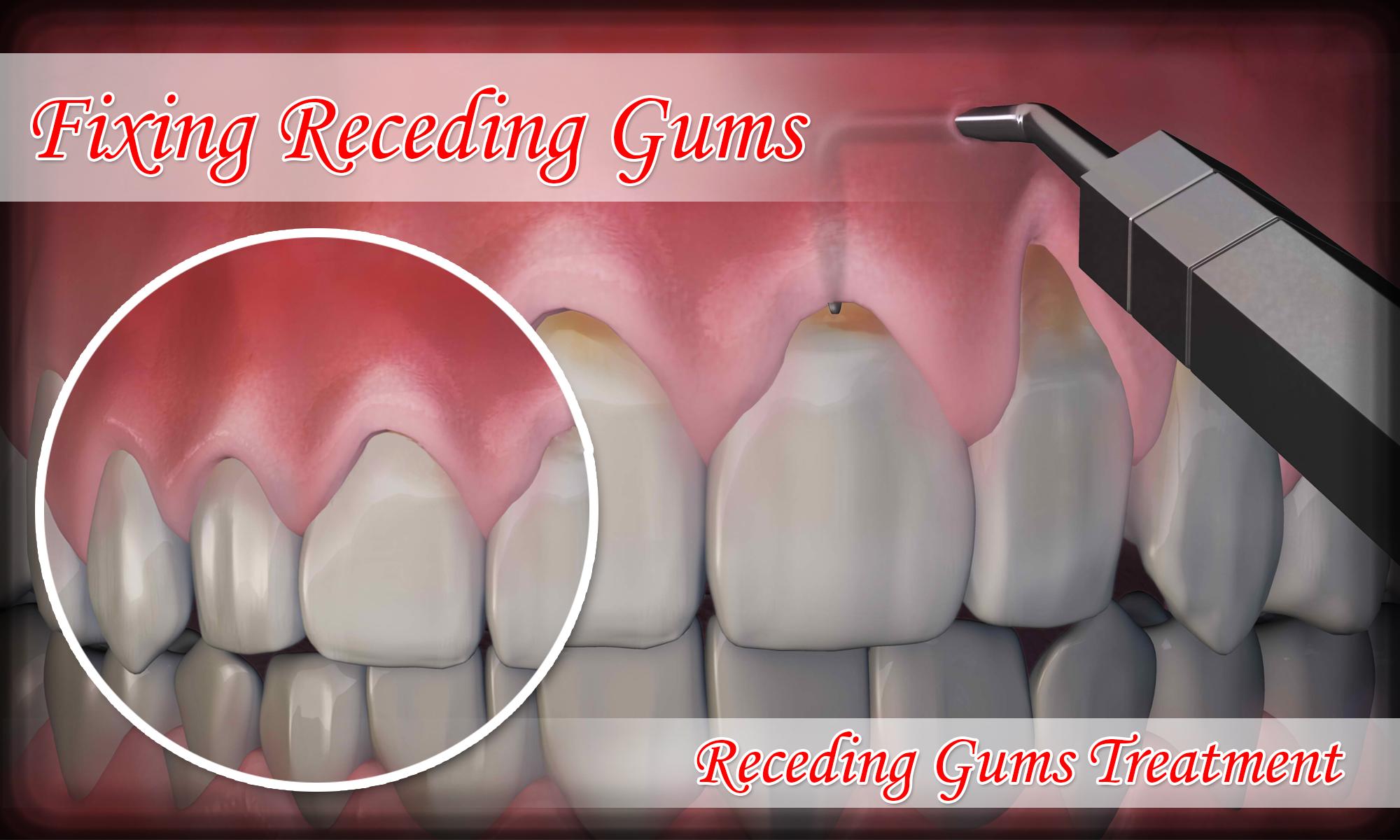 Fixing-Receding-Gums